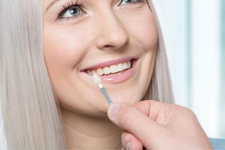 Dental Veneers Services in Weyburn SK